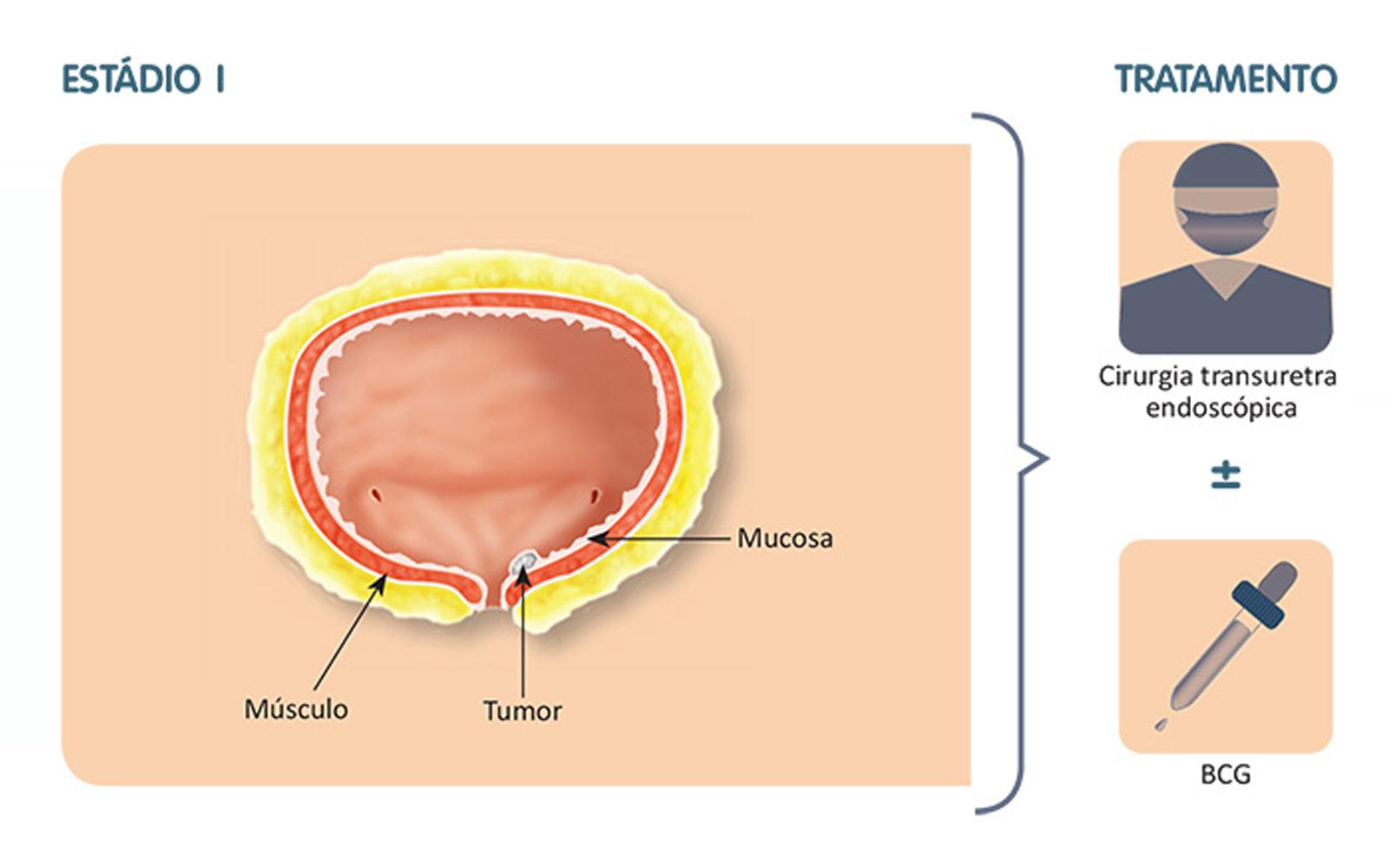 Mariane Fontes MD | Tratamento Intravesicais